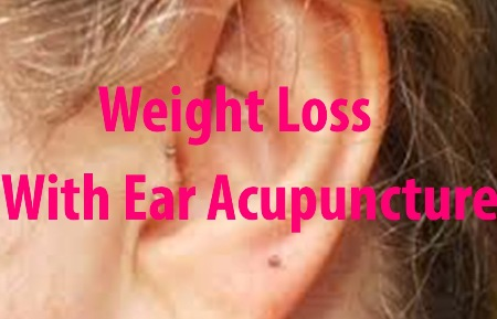 ear <a href='http://glaucomacausesqzo.sosblogs.com/The-first-blog-b1/If-De-qi-Can-Not-Be-Generated-Then-Inaccurate-Location-Of-The-Acupoint-Improper-Depth-Of-Needle-Insertion-Inadequate-Manual-Manipulation-Needling-In-The-Wrong-Place-Or-At-The-Wrong-Time-b1-p10.htm'>acupuncture</a> acupuncture for weight loss