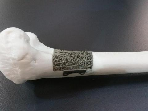 Scientists invent synthetic bone produced with 3D printable ink